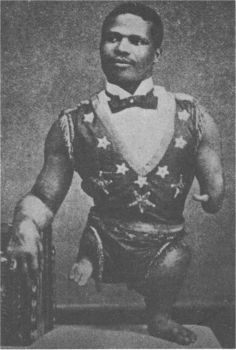 Freak Show Performer, possibly born with amnion bands, which had constricted his limbs.