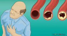 18-Foods-to-Clear-Your-Arteries-and-Protect-You-from-Heart-Attacks