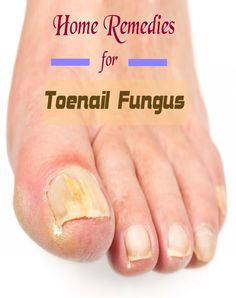Home Remedies for Toenail Fungus | fineremedy