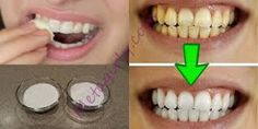 Watch This Video Fantasting All-Natural Home Remedies To Whiten Teeth Ideas. All Time Best All-Natural Home Remedies To Whiten Teeth Ideas. Teeth Whitening Remedies, Natural Teeth Whitening, Skin Whitening, Beauty Secrets, Beauty Hacks, Beauty Tips, Beauty Ideas, Tooth Sensitivity, White Teeth