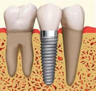 A missing tooth number 29 has been replaced by a Dental Implant. Dental Implants allow you to chew and function just like your natural teeth! Are you missing a tooth? Consider a Dental Implant as a more permanant replacement! Implant Dentistry, Cosmetic Dentistry, Dental Health, Dental Care, Dental Hygiene, Dental Logo, Oral Health, Dental Group, Dental Assistant