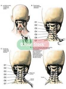 cervical spine fusion surgery - I'm fused C2 to T1