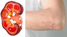 signos de problemas en riñones