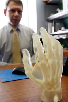 A model of a hand, made from UV-cured polymer by a 3-D printer, rests on the desk of Karl West, director of Medical Device Solutions at the Cleveland Clinic. #ClevelandClinic #3Dprinter #Innovations  #hcmktg #hcmkg
