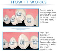 Great features of self ligating!!