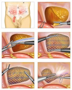 The Health Hub: Inguinal Hernia Repair - Overview Hernia Inguinal, Abdominal Hernia, Hernia Repair, Types Of Surgery, After Surgery, Best Diets, Getting Old, Health, Detox