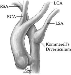 Kommerell's Diverticulua: Bulbous configuration of the origin of an aberrant Left subclavian artery in the setting of a Rght sided aortic arch.