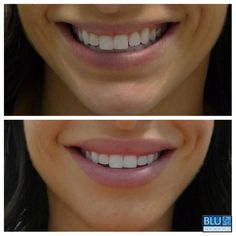 """nothing like natural-looking, fuller lips to make a gorgeous smile stand out even more! """"After"""" photo was taken 5 months after separate injections of Juvederm Ultra, one month apart. Lip Injections Juvederm, Restylane Lips, Botox Fillers, Lip Fillers, Dermal Fillers Lips, Lipstick For Fair Skin, How To Apply Lipstick, Juviderm Lips, Camouflage Makeup"""