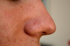 Blackheads are clogged pores on the face and nose that are caused due to oily skin. It occur when skin pores become clogged with excess sebum oil, dirt and dead skin cells. Beauty Care, Diy Beauty, Beauty Skin, Beauty Makeup, Beauty Hacks, Get Rid Of Blackheads, Clear Blackheads, Homemade Cosmetics, Skin Care Products