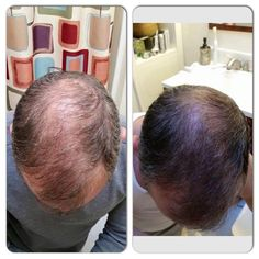 Find This Pin And More On Monat Mens Transformations Using Hair Care Products