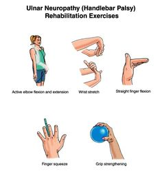 Ulnar Nerve Exercises | EXERCISE FOR ULNAR NERVER INJURY/ULNAR NEUROPATHY