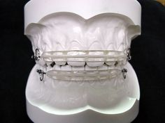 The treatment time with the Inman Aligner is usually faster than clear invisible braces and usually much cheaper and is mainly used for front teeth alone