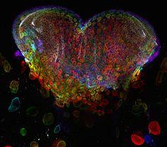 Eye organ of a Drosophila melanogaster (fruit fly) larvae.  Technique: Confocal, 60x. Michael Bridge