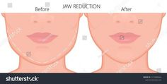 A young white female face before and after plastic surgery . A young white female face before and after plastic surgery – jaw reduction. Close up view. For advertising of plastic surgery, me… Extreme Plastic Surgery, Types Of Plastic Surgery, Plastic Surgery Photos, Facial Procedure, Operation, Best Seo Company, After Surgery, Female Face, Color Vector
