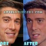 David Muir Plastic Surgery