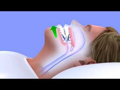 How to Stop Snoring | Best Snoring Solution That Actually Work!