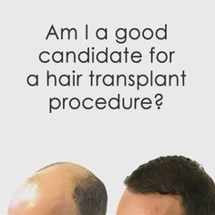Hair transplants from just KWD. For an accurate cost on your hair loss options call www. Hair Transplant Women, Hair Transplant Surgery, Hair Today Gone Tomorrow, Male Pattern Baldness, Hair Loss Women, Hair Restoration, Hairdresser, Eyebrows, Your Hair