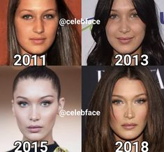With the increase of and eating disorders, much of it brought on by social media, accounts like CelebFace could actually help those suffering with self-esteem issues. Today on aesthetic aesthetic surgery job job before and after remodelling Kendall Jenner Plastic Surgery, Celebrity Plastic Surgery, Kylie Jenner Nose Job, Nose Plastic Surgery, Botox Before And After, Celebrities Before And After, Bella Hadid Nose, Bella Hadid Makeup, Bella Hadid Hair