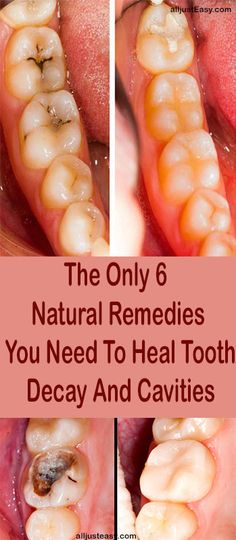 Holistic Health Remedies The tooth fairy isn't the biggest myth when it comes to teeth—it's the widespread misconception that cavities and tooth decay are irreversible. Dentists and society as a whole, have done a pretty g… Homeopathic Remedies, Health Remedies, Natural Remedies, Holistic Remedies, Teeth Rotting, Remedies For Tooth Ache, Home Remedies For Cavities, Toothache Remedy, Heal Cavities