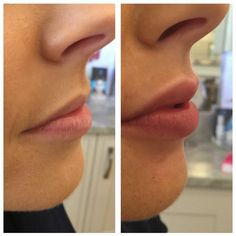 Love the great results on the upper lip especially!