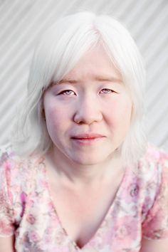 Google Image Result for http://3.bp.blogspot.com/-ykLIrWBW3U8/ToBWmeFerAI/AAAAAAAAA4c/g8uJccupKZE/s1600/belinda_mason_Albino_asian_woman.jpg