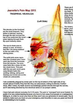 Trigeminal Neuralgia pain