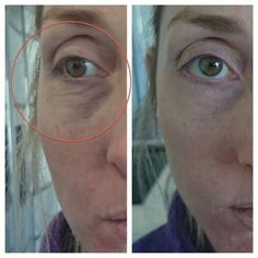 2 minute miracle!! Check out my website for the answer to slowing down the aging process. www.vitality365.jeunesseglobal.com