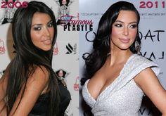 Before and after pictures of celebrities that have had Botox injections. Photos of stars before and after Botox. Kardashian Plastic Surgery, Celebrity Plastic Surgery, Alternative Zu Botox, Facial Cosmetic Surgery, Botox Lips, Nose Surgery, Celebrities Before And After, Botox Injections, Cosmetic Procedures