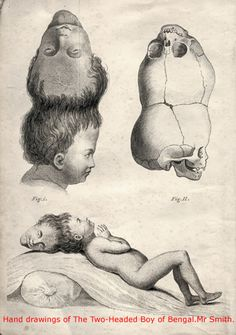 The Two-Headed Boy of Bengal was born in the village of Mundul Gait in Bengal in May of 1783 into a poor farming family. His remarkable life was very nearly extinguished immediately after his delivery as a terrified midwife tried to destroy the infant by throwing him into a fire. Miraculously, while he was rather badly burned about the eye, ear and upper head, he managed to survive.    The term 'Two-Headed' may be a bit misleading as rather that two heads side by side, the Boy actually had…