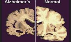 """Alzheimer damages before symptoms// """"Australian research on an inherited form of Alzheimer's has found that neuron damage starts decades prior to symptoms appearing, and the progression of the disease actually slows down once symptoms appear."""" (click for more)"""
