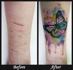 Tattoo Over Scars Tattoo Inspiration Pinterest Tattoos Cover