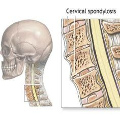 Cervical spondylosis is basically arthritis of the neck. A common condition, cervical spondylosis affects a lot of people, especially older adults. Neck Arthritis, Rheumatoid Arthritis, Arthritis Relief, Arthritis Remedies, Pain Relief, Cervical Spondylosis, Craniosacral Therapy, Ankylosing Spondylitis, Occipital Neuralgia