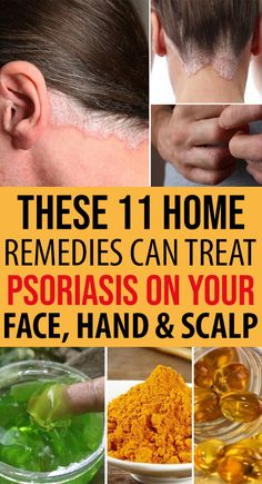 Homemade Psoriasis Remedies You Need to Know About The post Homemade Psoriasis Remedies You Need to Know About & Schuppenflechte appeared first on Problème de peau . Home Remedies For Psoriasis, Uti Remedies, Natural Health Remedies, Herbal Remedies, Psoriasis Scalp, Psoriasis On Hands, Scalp Psoriasis Treatment, Plaque Psoriasis, Dark Circle