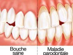 Remède naturel contre le déchaussement des dents