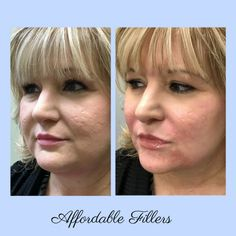 These are just some examples of our daily treatment plans we offer. We strive to give you natural, tasteful and lovable results every time! Liquid Facelift, Gallery, Image
