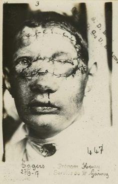 Man with facial injuries, 1917, WW1. National Museum of Health and Medicine. L'homme avec des blessures au visage, 1917, WW1. Musée national de la santé et de la médecine.