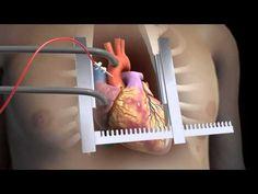 ▶ Sternotomy - Open Heart Surgery 3D Animation - YouTube