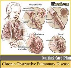 Care Plans/ Concept Maps on Pinterest | Nursing Care Plan, Care Plans