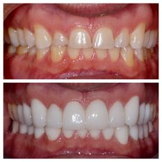 This patient improved his smile with porcelain jacket crowns #porcelain #ceramic #jacketcrown #crowns #dentalcrown #dentalcrowns #cosmeticdentist #cosmeticmakeover #cosmeticdentistry #newsmile #smilemakeover #smiletransformation #smiles #alwayssmile #WeissSmile #drsolweiss #drweiss #artofdentistry #AOD #25bellair #hollywood #hollywoodsmile #whiteteeth #yorkville #yorkvilledentist #yorkvilletoronto #toronto #torontodentist by artofdentistry Our Dental Crowns Page…