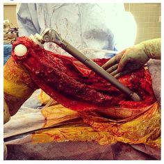 Cirugía de reemplazo total de fémur debido a Condrosocarcoma