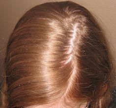 Vamos ensinar uma receita caseira que vai deixar seus cabelos muito lindos.Mas antes queremos explicar algumas questões.