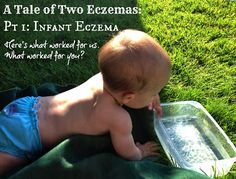 Infant Eczema: Tips, Tricks, Discussion. How do you get rid of Infant Eczema?