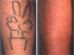 47 Best Tattoo Removal Images In 2013 Tattoo Removal