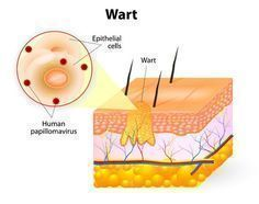 Unique and Promising Treatment for Resistant Plantar Warts The Human Papillomavirus (HPV) causes warts. This is the most common type of viral infection on the skin. Plantar warts tend to … How To Cure Warts, What Causes Warts, Genital Herpes, Oregano Essential Oil, Lemongrass Essential Oil, Essential Oils, Home Remedies For Warts, Warts Remedy
