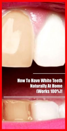How To Have White Teeth Naturally At Home (Works – Natural Remedies Box Teeth Whiting At Home, Calcium Rich Foods, Stained Teeth, Oil Pulling, White Teeth, Oral Hygiene, Fruits And Veggies