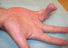 Needle Aponeurotomy for Dupuytren's Contracture