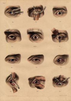 2 Antique Medical Anatomy Prints Eyelid Ptosis Cornea Iris Lens P7 Bourgery 1831   eBay