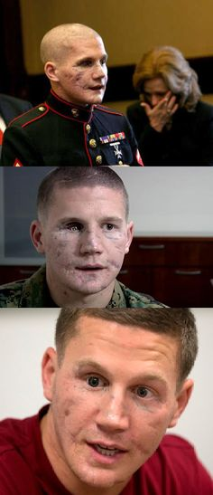 "Modern Medicine and War - William ""Kyle"" Carpenter lost most of his jaw and an eye when he fell on a grenade to shield a fellow Marine from the blast. His body shattered, one lung collapsed, the Marine lance corporal was nearly given up for dead after that 2010 Afghanistan firefight.    Then he spent 2½ years in a hospital as doctors worked to rebuild his body    Full Article:   http://www.cnn.com/2014/05/20/us/medal-of-honor-carpenter/index.html?hpt=hp_c4"
