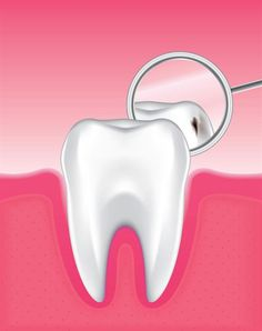 Dentaltown - Dental caries, also known as tooth decay or cavities, is one of our most common oral diseases. Cavities are caused by acid attacks on the tooth enamel.