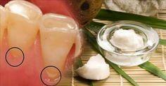 Esta es la mejor forma de eliminar el sarro rápidamente de los dientes sin necesidad de gastar dinero en el odontologo